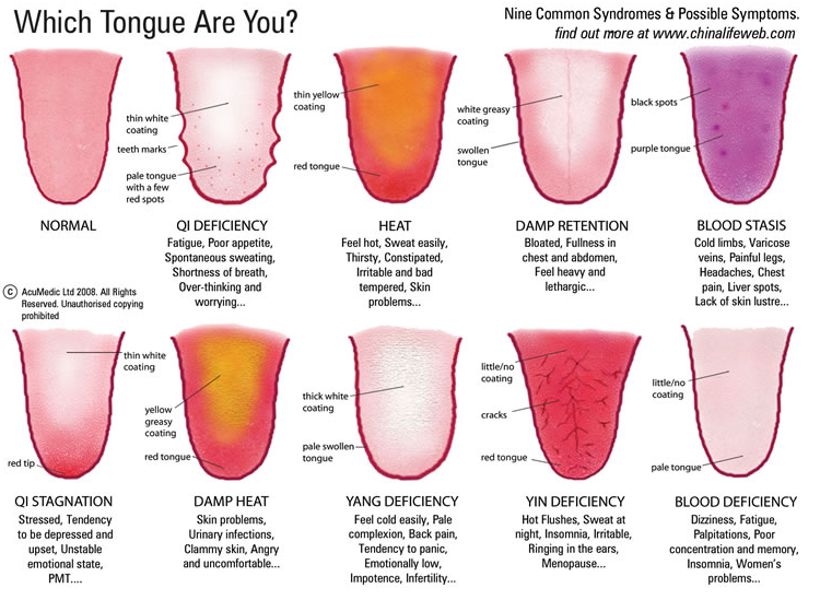 tongue guide