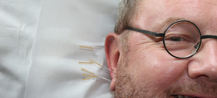 acupuncture myth and truth